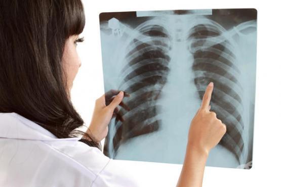 Безплатни прегледи за туберкулоза!