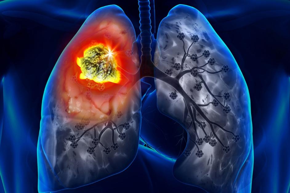 Безплатни прегледи за туберкулоза в Смолян