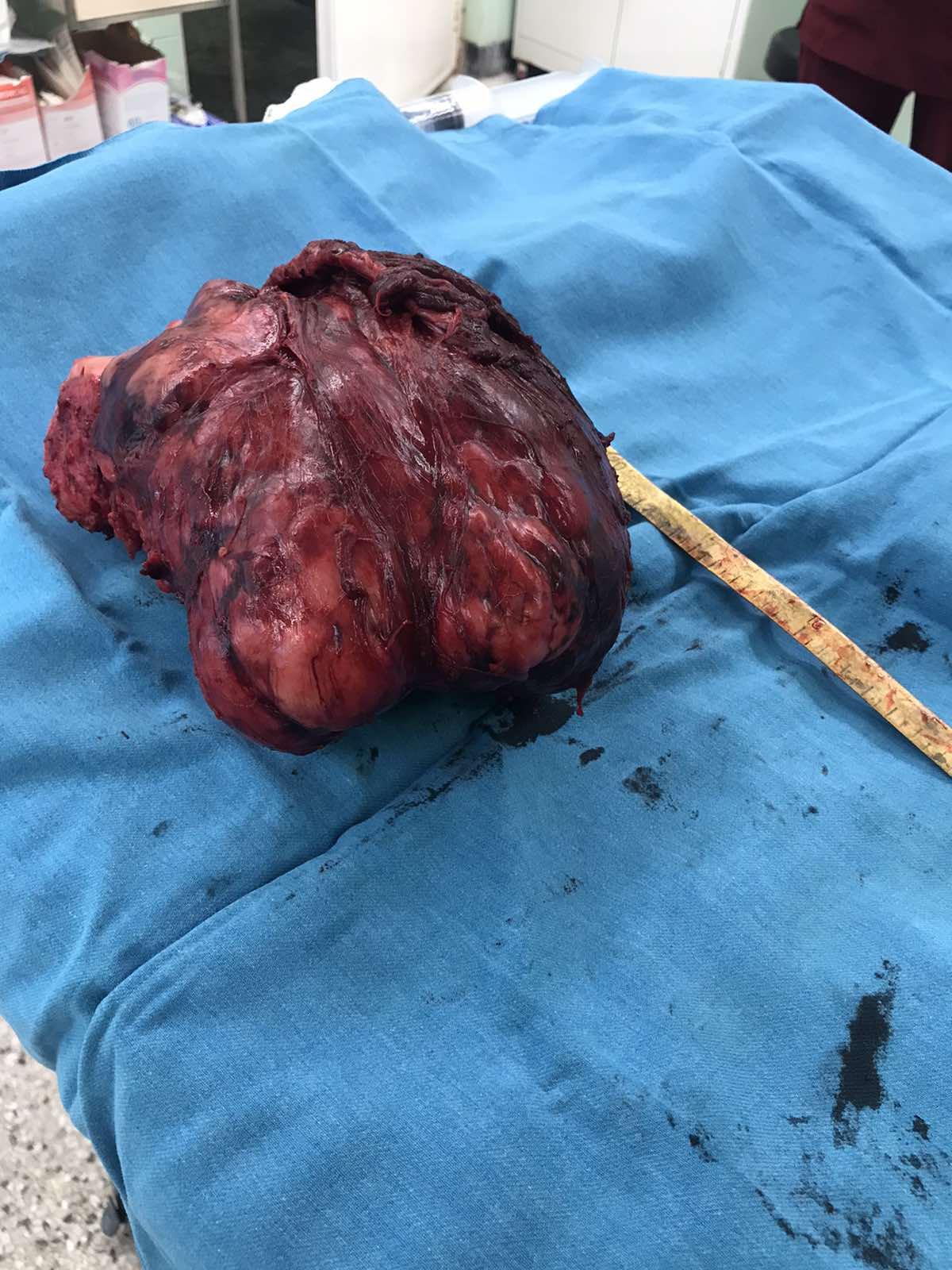 """Премахнаха тумор с размери на детска глава  от коляно на пациент в УМБАЛ """"Свети Георги"""""""