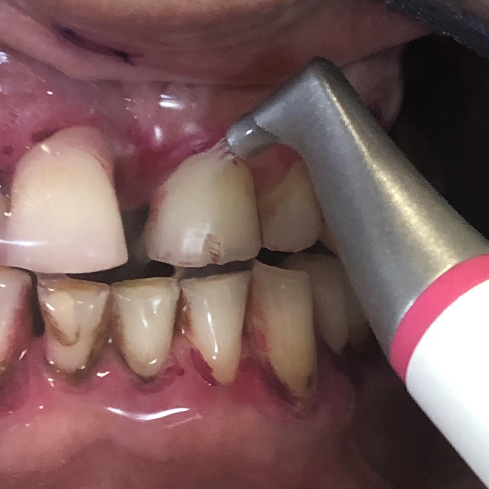 Иновативен метод обръща на 180 градуса начина за поддържане на здрави зъби и венци