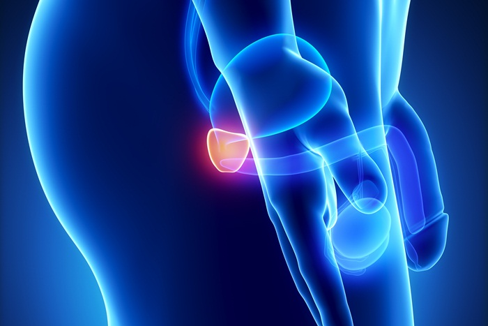 """30% намаление от стойността на пакет """"Профилактика на простатата"""" в Хил Клиник"""