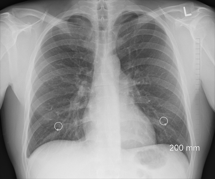 БЕЗПЛАТНИ ПРЕГЛЕДИ за риск от туберкулоза в Пловдив