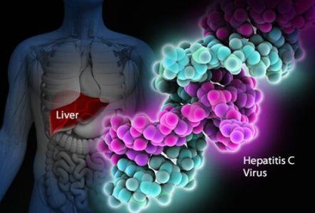 Възможно ли е да  елиминираме хепатит С у нас?