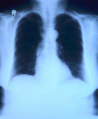 Клиниката във Виена готова да възобнови приема на българи за трансплантации на бял дроб