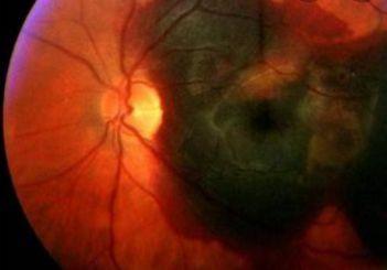 Безплатни очни прегледи през целия октомври