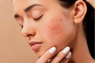 Безплатни онлайн консултации с дерматолог