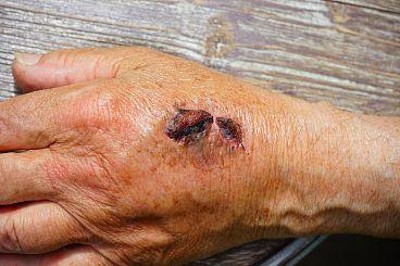 Безплатни прегледи за пациенти с изгаряния, трудно заздравяващи рани и белези след операции