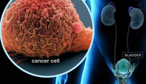 Над 2000 българи умират от рак на пикочния мехур всяка година